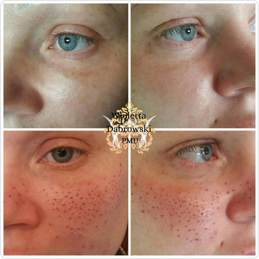Sommersprossen_Permanent_Make-up_Wien_Wioletta_Dabrowski