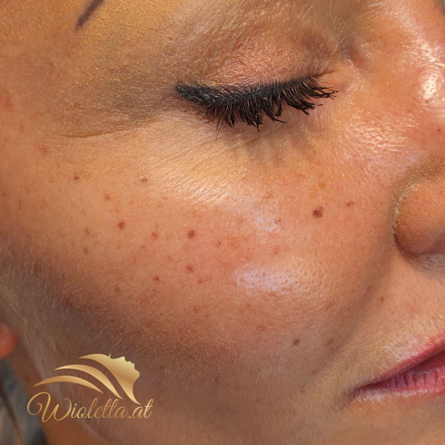 Sommersprossen_Permanent_Make-up_Wien_Wioletta_Dabrowski